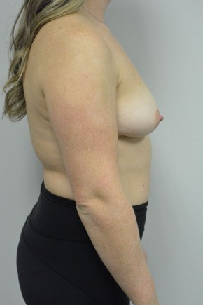 Before Photo - Breast Augmentation - Case #21319 - 25-34 year old woman treated with Breast Augmentation using Ideal implants - Lateral View