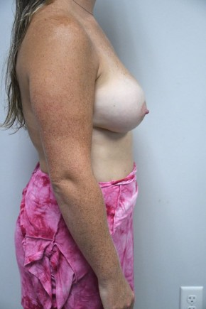 After Photo - Breast Augmentation - Case #21319 - 25-34 year old woman treated with Breast Augmentation using Ideal implants - Lateral View