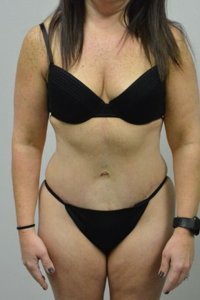 After Photo - Tummy Tuck - Case #21321 - 34-44 year woman treated with an extended abdominoplasty - Frontal View