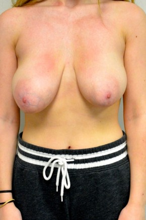 Before Photo - Breast Reduction - Case #21322 - 18-24 year old woman treated with Breast Reduction - Frontal View