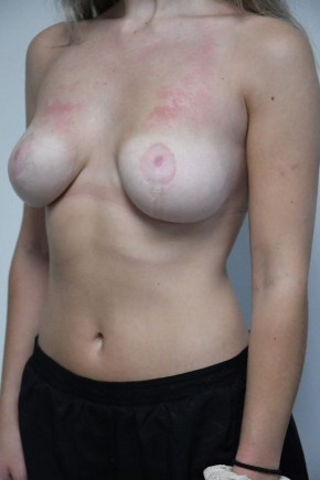 After Photo - Breast Reduction - Case #21322 - 18-24 year old woman treated with Breast Reduction - Oblique View