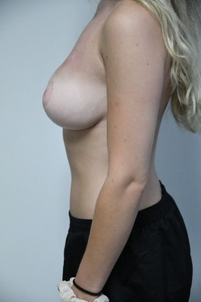 After Photo - Breast Reduction - Case #21322 - 18-24 year old woman treated with Breast Reduction - Lateral View
