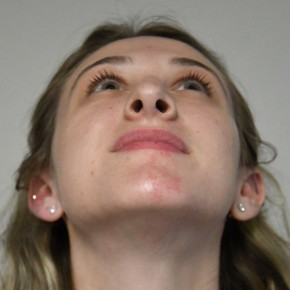 After Photo - Nose Surgery - Case #21323 - 2o year woman with rhinoplasty - Worm's Eye View