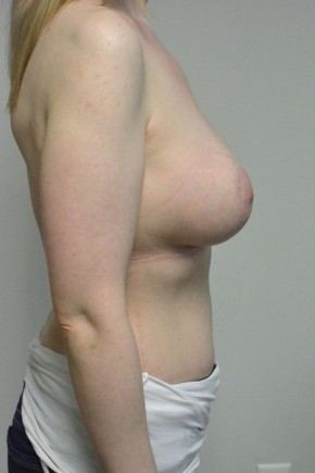 After Photo - Breast Augmentation - Case #21329 - 34-44 year old woman  treated with breast augmentation using Ideal Implants - Lateral View