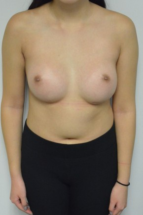 After Photo - Breast Augmentation - Case #21331 - 22 year old woman with breast augmentation - Frontal View