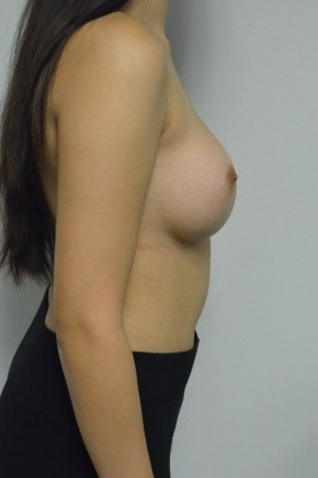After Photo - Breast Augmentation - Case #21331 - 22 year old woman with breast augmentation - Lateral View