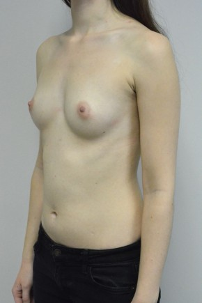 Before Photo - Breast Augmentation - Case #21332 - 18-24 year old woman treated with Ideal structured saline Breast Implants - Oblique View