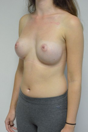After Photo - Breast Augmentation - Case #21332 - 18-24 year old woman treated with Ideal structured saline Breast Implants - Oblique View