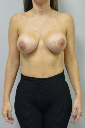 After Photo - Breast Revision - Case #21333 - 25-34 year old woman treated with replacement of older saline implants  using Ideal structured saline implants - Frontal View