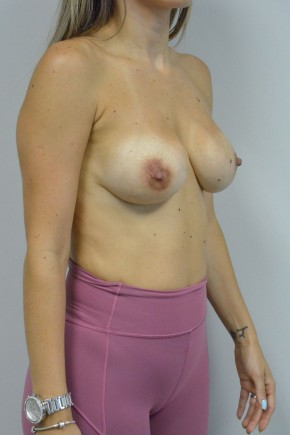 Before Photo - Breast Revision - Case #21333 - 25-34 year old woman treated with replacement of older saline implants  using Ideal structured saline implants - Oblique View