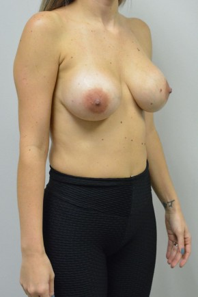 After Photo - Breast Revision - Case #21333 - 25-34 year old woman treated with replacement of older saline implants  using Ideal structured saline implants - Oblique View