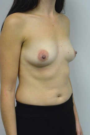 Before Photo - Breast Augmentation - Case #21334 - 34-44 year old woman treated with breast augmentation using Ideal Implants - Oblique View