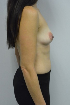 Before Photo - Breast Augmentation - Case #21334 - 34-44 year old woman treated with breast augmentation using Ideal Implants - Lateral View