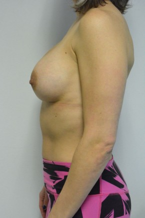 After Photo - Breast Augmentation - Case #21335 - 34-44 year woman treated with microtextured high profile cohesive silicone gel implants.   - Lateral View