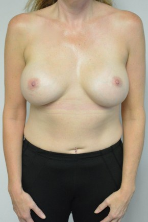 After Photo - Breast Augmentation - Case #21336 - 45-55 year woman treated with Ideal Structured Saline Implants - Frontal View
