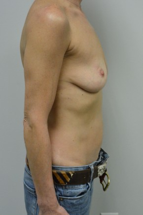 Before Photo - Breast Augmentation - Case #21338 - 45-55 year woman treated with Ideal Structured Saline Implants - Lateral View