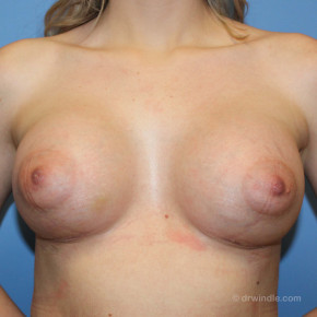 After Photo - Breast Augmentation - Case #21354 - Breast Augmentation Boosts Confidence - Frontal View