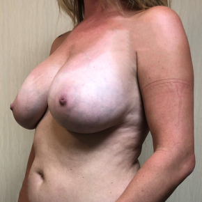 Before Photo - Breast Lift - Case #21447 - Removal of Implants and Mastopexy  - Oblique View