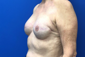 After Photo - Breast Reconstruction - Case #21470 - Oblique View