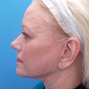 After Photo - Facelift - Case #21479 - 66 year old - Facelift/Upper & Lower Blepharoplasty/Skin Resurfacing - 4 months post-op - Lateral View