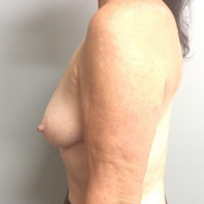 Before Photo - Breast Reconstruction - Case #21487 - Breast Reconstruction on a 68 year old female - Lateral View