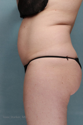 Before Photo - Tummy Tuck - Case #21493 - Lateral View