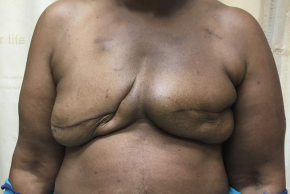 Before Photo - Breast Reconstruction - Case #21500 - Breast Reconstruction on a 63 year old patient - Frontal View