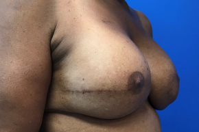 After Photo - Breast Reconstruction - Case #21500 - Breast Reconstruction on a 63 year old patient - Oblique View