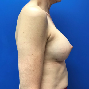 After Photo - Breast Augmentation - Case #21511 - Breast Augmentation on a 46 year old woman - Lateral View