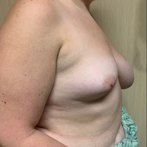 Before Photo - Breast Augmentation - Case #21512 - Left Breast Reduction and Right Breast Augmentation on a 22 year old patient - Lateral View