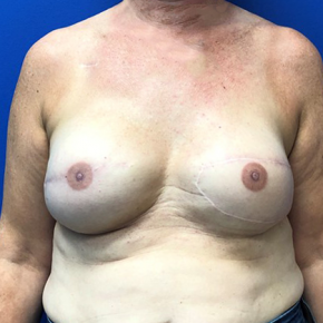 After Photo - Breast Reconstruction - Case #21520 - Breast Reconstruction on a 49 year old female - Frontal View