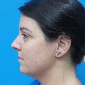 Before Photo - Nose Surgery - Case #21526 - 40 year old  -  Rhinoplasty & Septoplasty  -  1 month post-op - Lateral View