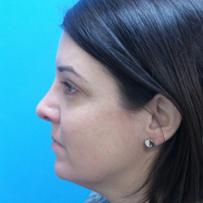 After Photo - Nose Surgery - Case #21526 - 40 year old  -  Rhinoplasty & Septoplasty  -  1 month post-op - Lateral View