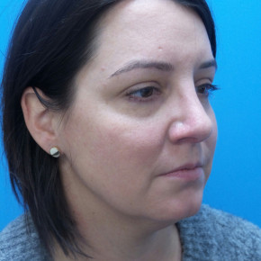 After Photo - Nose Surgery - Case #21526 - 40 year old  -  Rhinoplasty & Septoplasty  -  1 month post-op - Oblique View