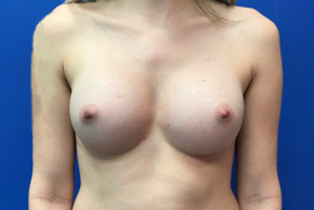 After Photo - Breast Augmentation - Case #21529 - Breast Augmentation on a 28 year old female - Frontal View