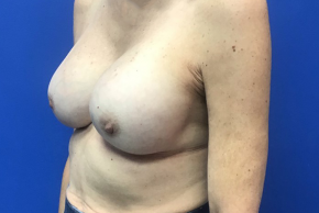 After Photo - Breast Revision - Case #21538 - Implant Replacement on a 59 year old female - Oblique View