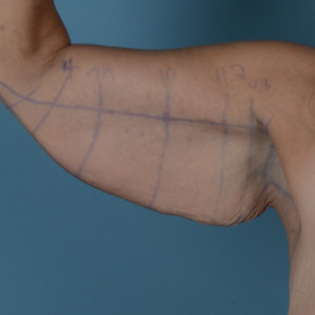 Before Photo - Upper Arm Lift - Case #21540 - Arm lift in Massive Weight Loss patient - Frontal View