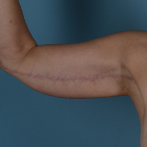 After Photo - Upper Arm Lift - Case #21540 - Arm lift in Massive Weight Loss patient - Frontal View