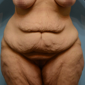 Before Photo - Plastic Surgery After Dramatic Weight Loss - Case #21541 - Abdominoplasty in Massive Weight Loss patient - Frontal View