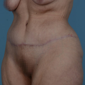 After Photo - Plastic Surgery After Dramatic Weight Loss - Case #21541 - Abdominoplasty in Massive Weight Loss patient - Oblique View