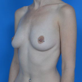 Before Photo - Breast Augmentation - Case #21546 - Breast Augmentation, Asymmetry - Oblique View