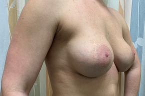 Before Photo - Breast Revision - Case #21552 - 40 year old female remove and replace implants - Oblique View
