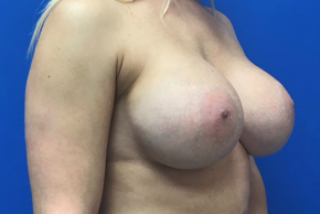 After Photo - Breast Revision - Case #21552 - 40 year old female remove and replace implants - Oblique View