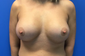 After Photo - Breast Augmentation - Case #21553 - 36 year old female silicone breast augmentation - Frontal View