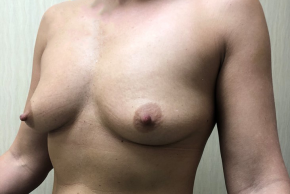 Before Photo - Breast Augmentation - Case #21553 - 36 year old female silicone breast augmentation - Oblique View