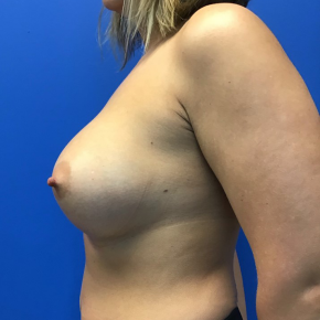 After Photo - Breast Augmentation - Case #21553 - 36 year old female silicone breast augmentation - Lateral View