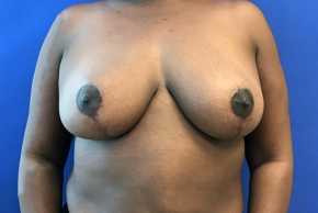 After Photo - Breast Reduction - Case #21554 - Breast reduction on a 47 year old female - Frontal View