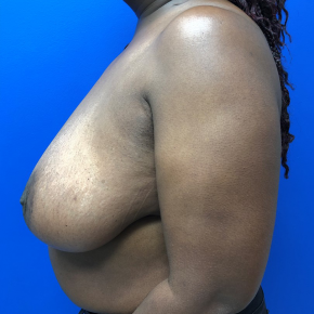 Before Photo - Breast Reduction - Case #21554 - Breast reduction on a 47 year old female - Lateral View