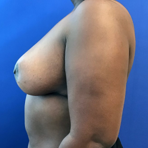 After Photo - Breast Reduction - Case #21554 - Breast reduction on a 47 year old female - Lateral View