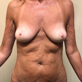 Before Photo - Mommy Makeover - Case #21572 - Mommy Makeover on a 58 year old female - Frontal View
